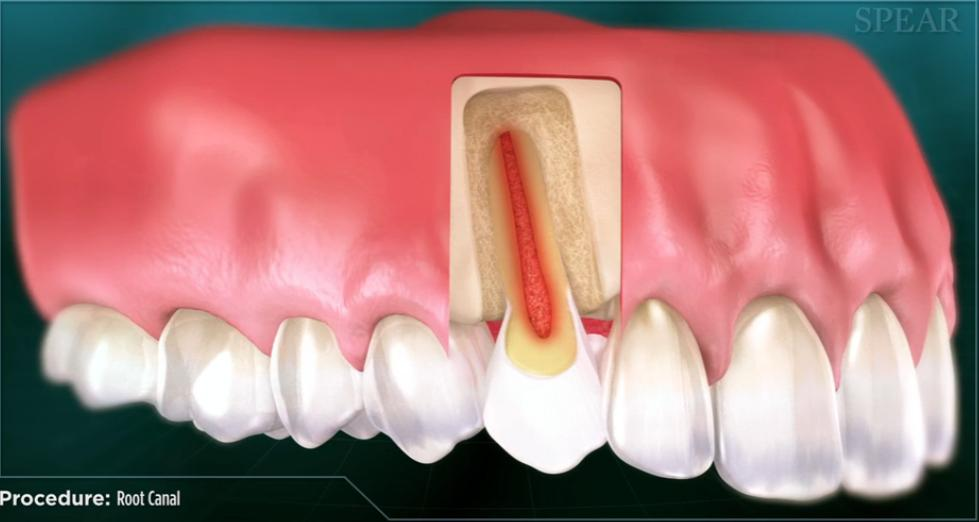 Root Canal Therapy - Endodontic Treatment | Root Canal Dentist