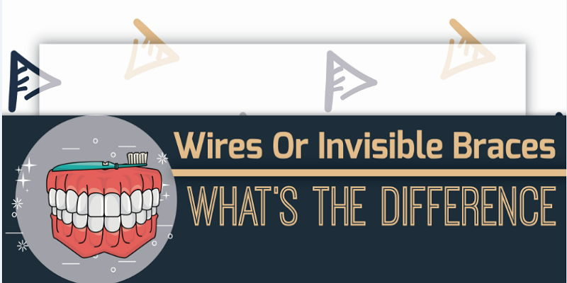Wired Or Invisible Braces