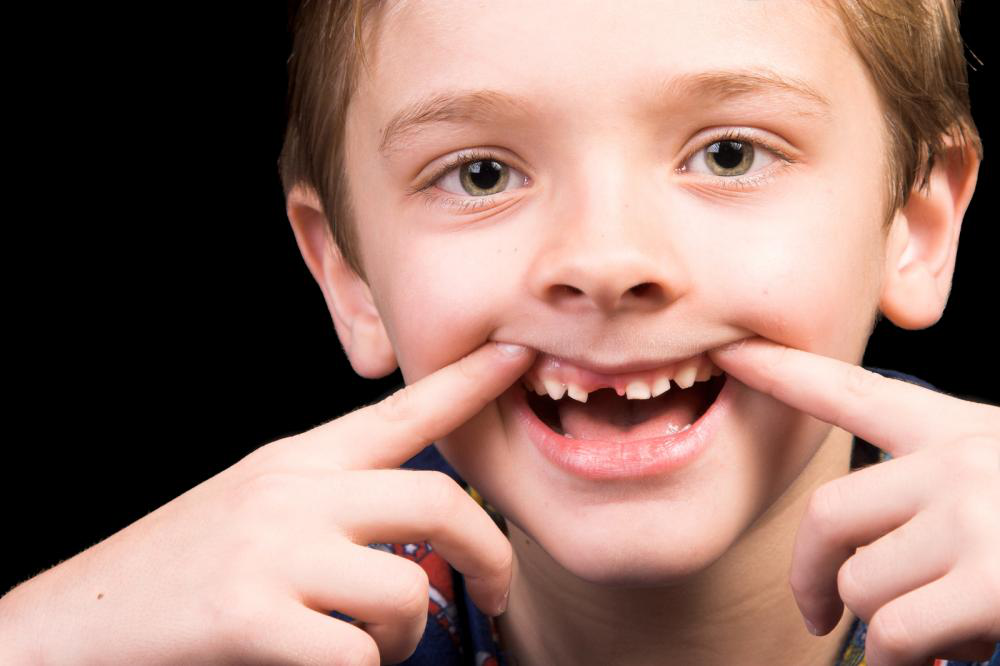 kid with broken tooth