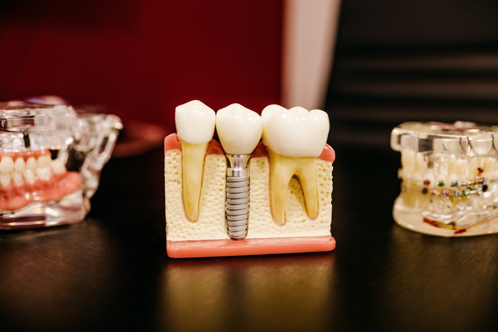 artificial teeth on a dentist's table