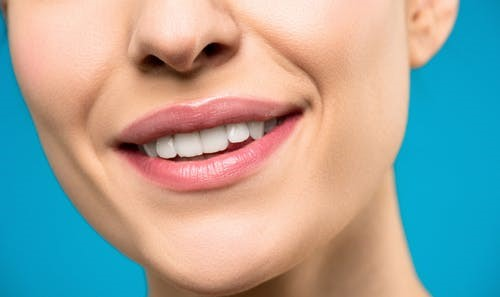 Teeth whitening treatment done by a dentist in West Hills, CA.