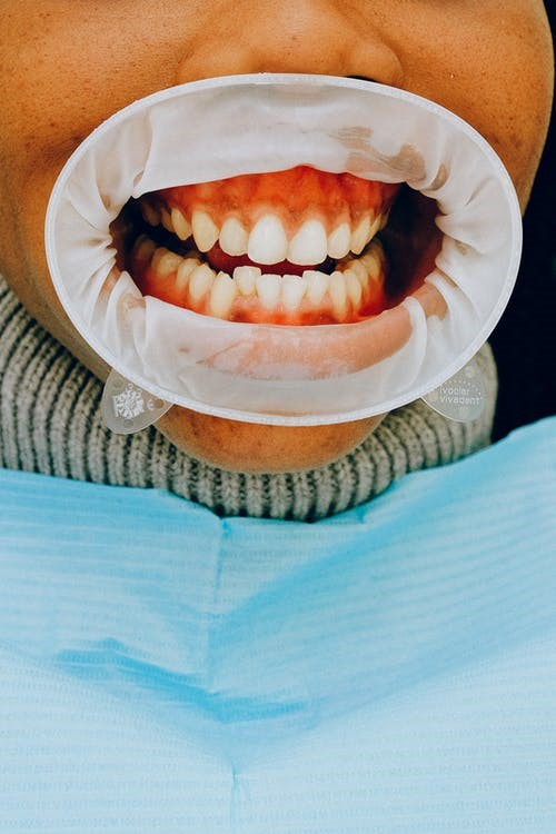 Gum treatment done by a dentist in West Hills, CA.