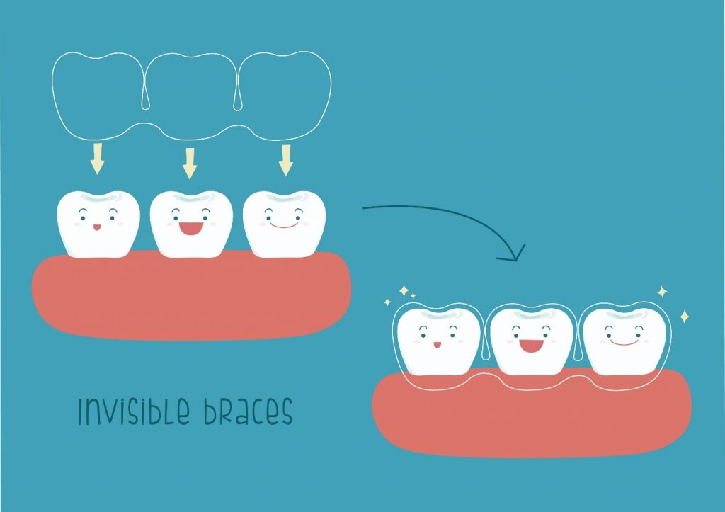 Illustration of teeth covered by invisible braces
