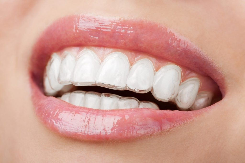 Teeth with invisible braces
