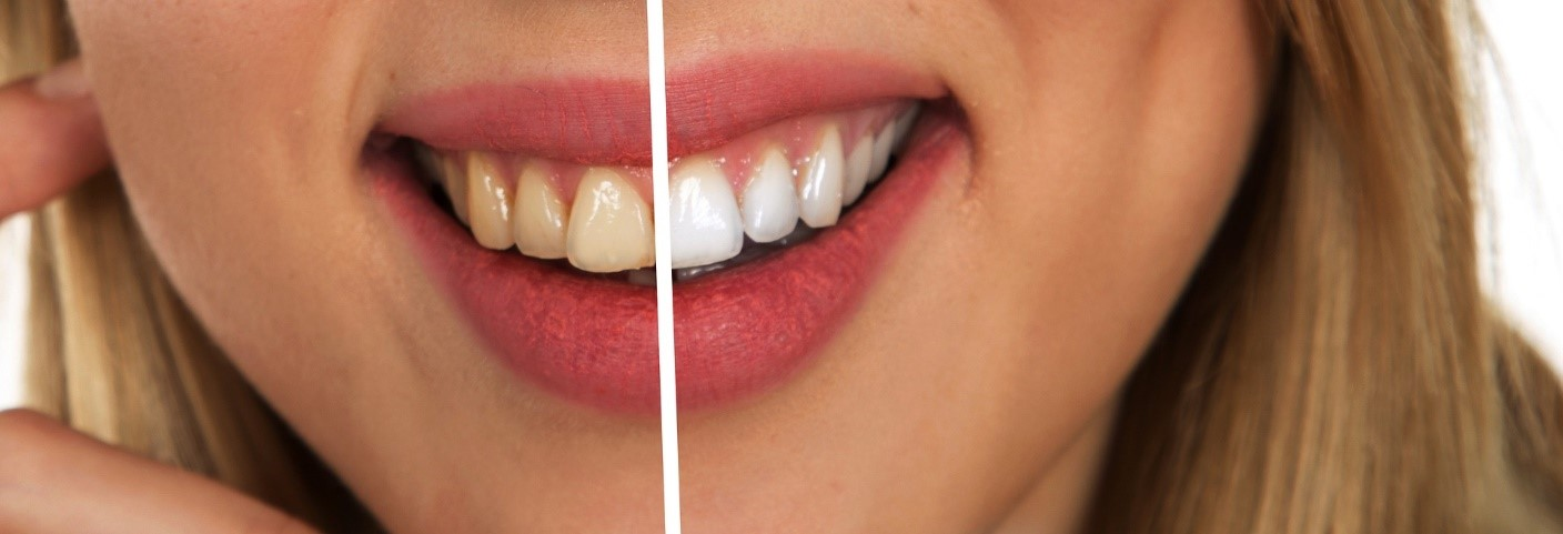 A woman smiling with half her teeth whitened
