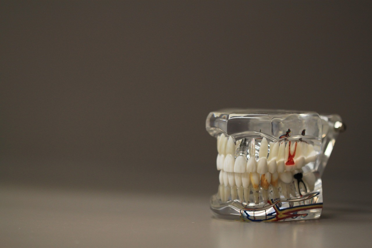 Glass model of human teeth and gums