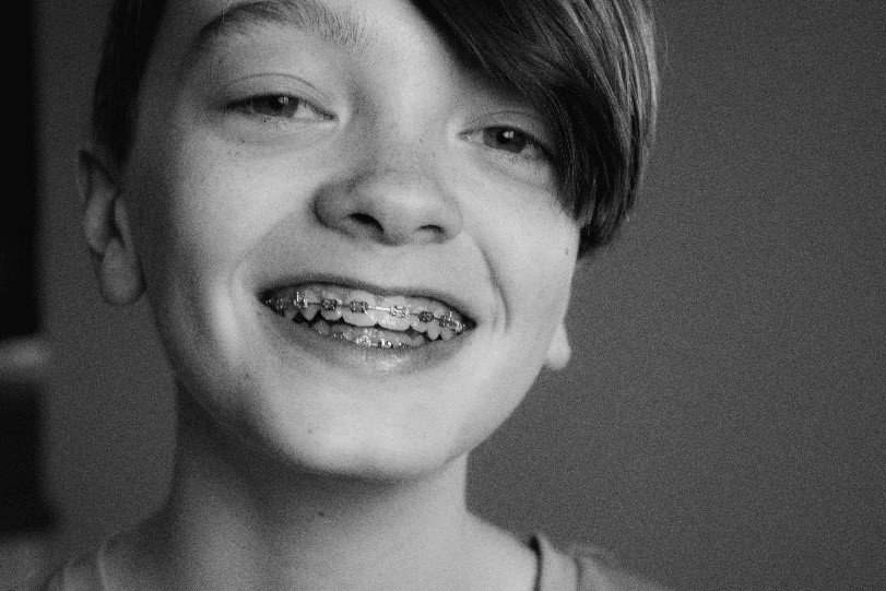 A child with braces smiles