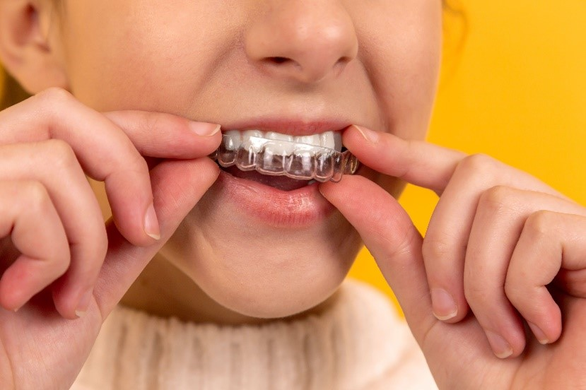 A girl puts on a retainer