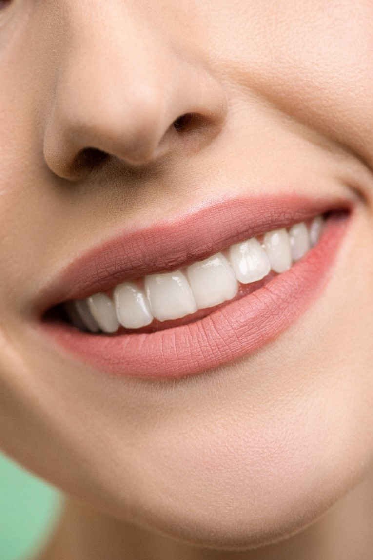 a girl smiling with aligned teeth