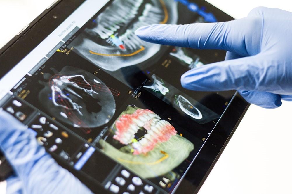 A dentist looking at a dental X-ray