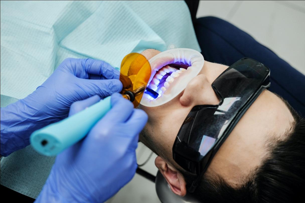 Teeth cavity detection West Hills, CA.