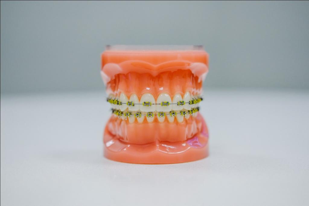 Dental braces treatment west hills ca